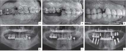 Остеотомия верхней челюсти: показания и способ проведения, последствия лечения асимметрии челюсти